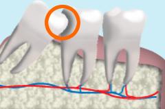 虫歯の原因になる智歯