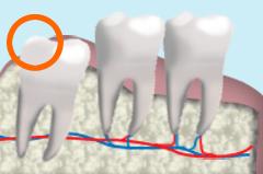 感染症の原因になる智歯