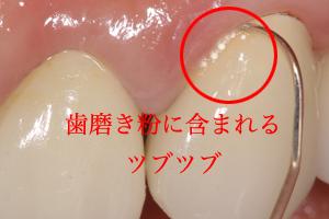 市販の歯磨き粉(歯周病向け歯磨き粉・むし歯向け歯磨き粉)の効果とは