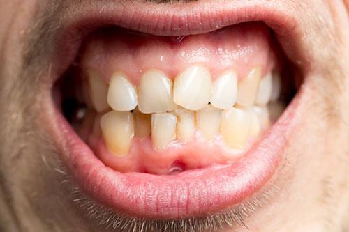 歯槽 膿 漏 の 治し 方