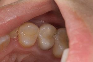 見えない虫歯の恐怖