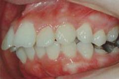 出っ歯(上顎前突)