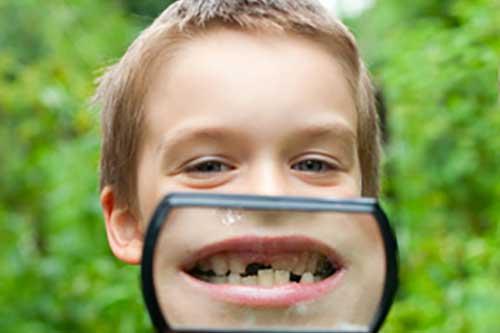 子供の歯のアップ
