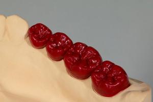 歯科技工士藤坂