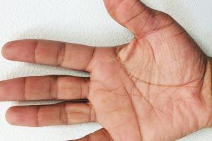 金属アレルギーの症状