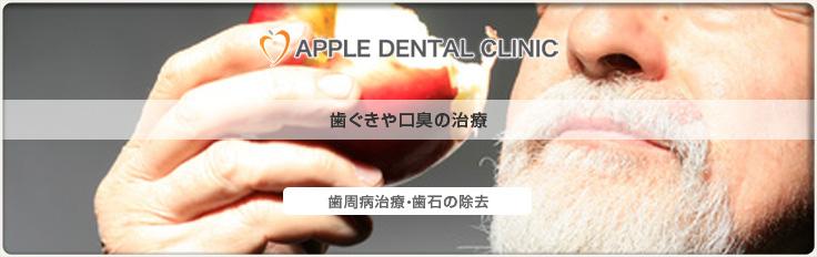 アップル歯科の歯周病口臭の治療