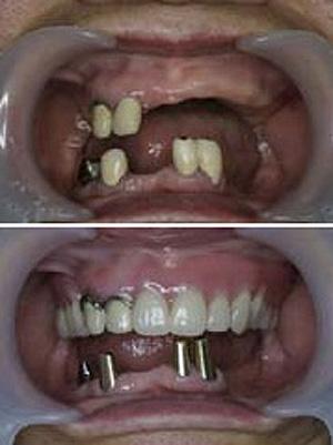 コーヌスクローネ義歯の治療手順、その1