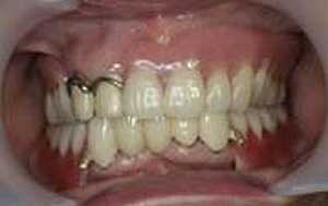 コーヌスクローネ義歯の治療手順、その2