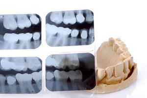 咬合性外傷、歯全体の治療