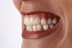 DSCは歯ぎしり、くいしばりによって起こります
