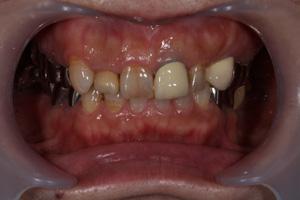 黒ずんだ歯